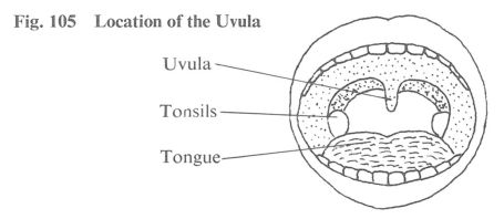 Fig. 105 Location of the Uvula